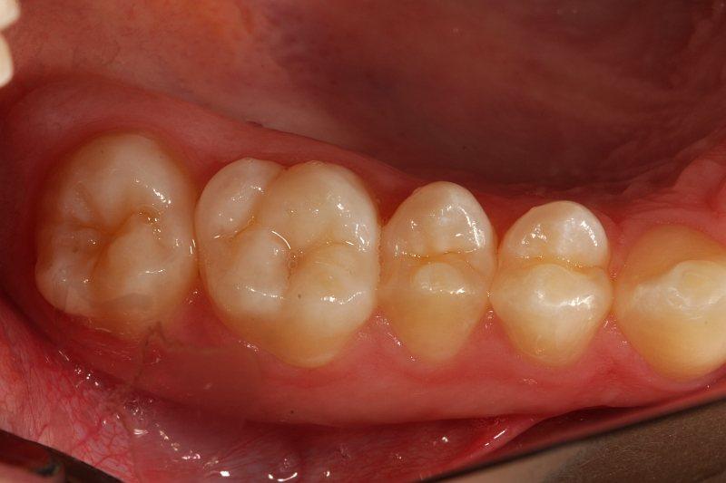unversiegelte Zähne